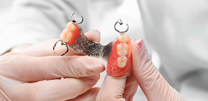 Закрепете протези на горната челюст